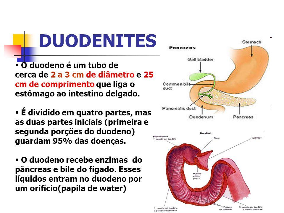 DUODENITES O duodeno é um tubo de cerca de 2 a 3 cm de diâmetro e 25 cm de comprimento que liga o estômago ao intestino delgado. É dividido em quatro