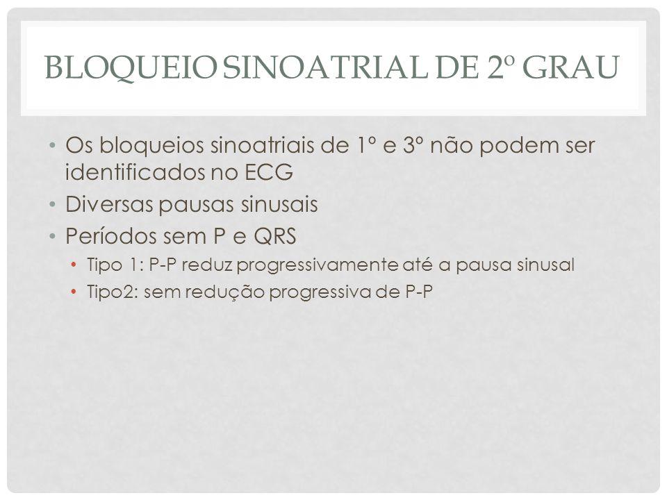 BLOQUEIO SINOATRIAL DE 2º GRAU Os bloqueios sinoatriais de 1º e 3º não podem ser identificados no ECG Diversas pausas sinusais Períodos sem P e QRS Ti