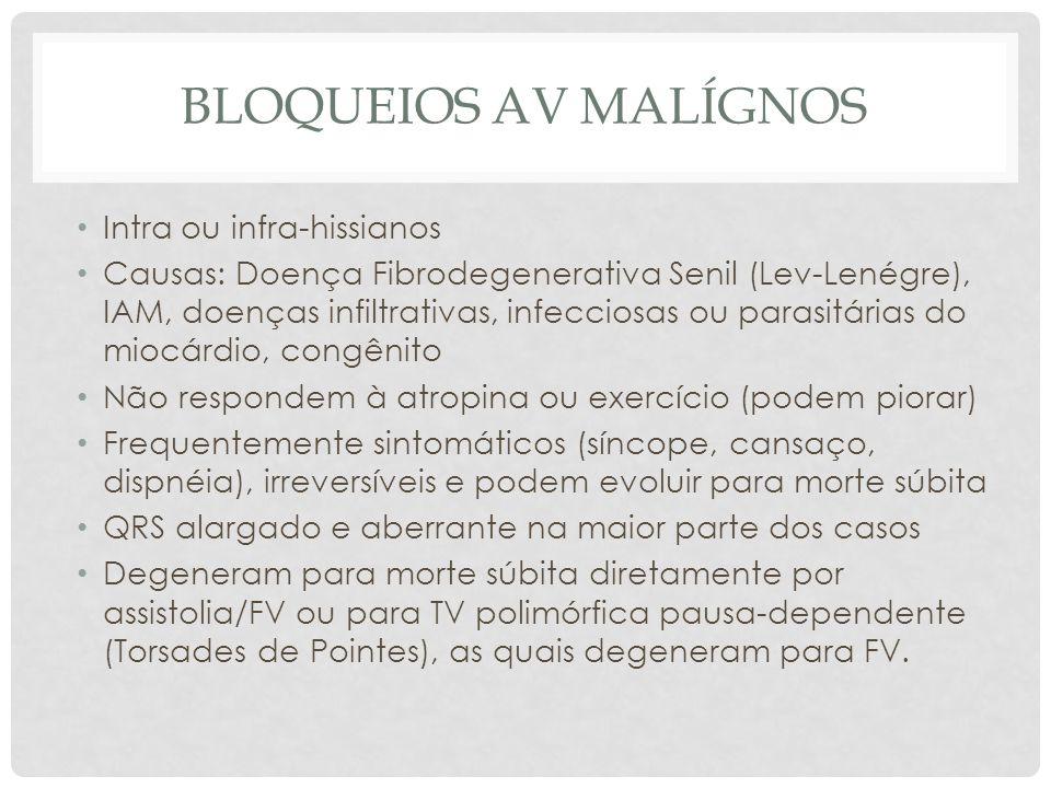 BLOQUEIOS AV MALÍGNOS Intra ou infra-hissianos Causas: Doença Fibrodegenerativa Senil (Lev-Lenégre), IAM, doenças infiltrativas, infecciosas ou parasi