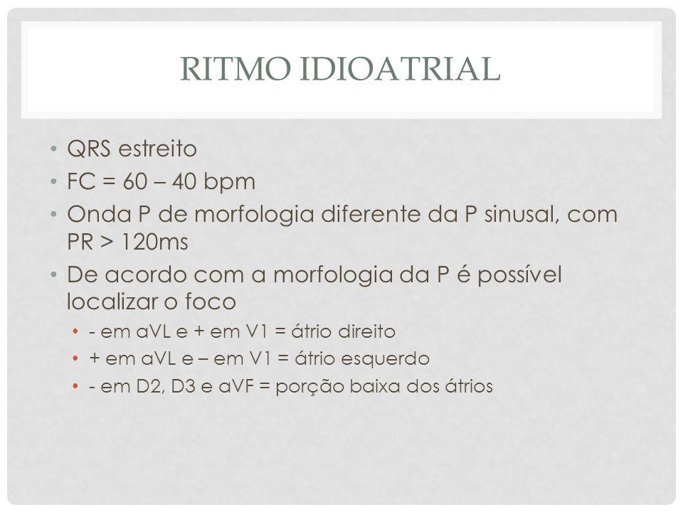 RITMO IDIOATRIAL QRS estreito FC = 60 – 40 bpm Onda P de morfologia diferente da P sinusal, com PR > 120ms De acordo com a morfologia da P é possível