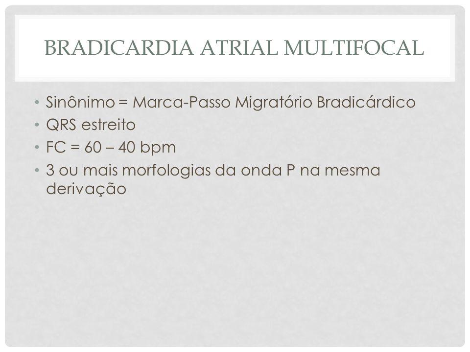 BRADICARDIA ATRIAL MULTIFOCAL Sinônimo = Marca-Passo Migratório Bradicárdico QRS estreito FC = 60 – 40 bpm 3 ou mais morfologias da onda P na mesma de