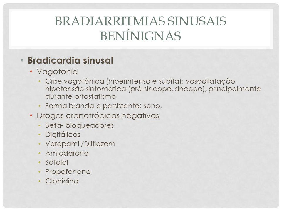 BRADIARRITMIAS SINUSAIS BENÍNIGNAS Bradicardia sinusal Vagotonia Crise vagotônica (hiperintensa e súbita): vasodilatação, hipotensão sintomática (pré-