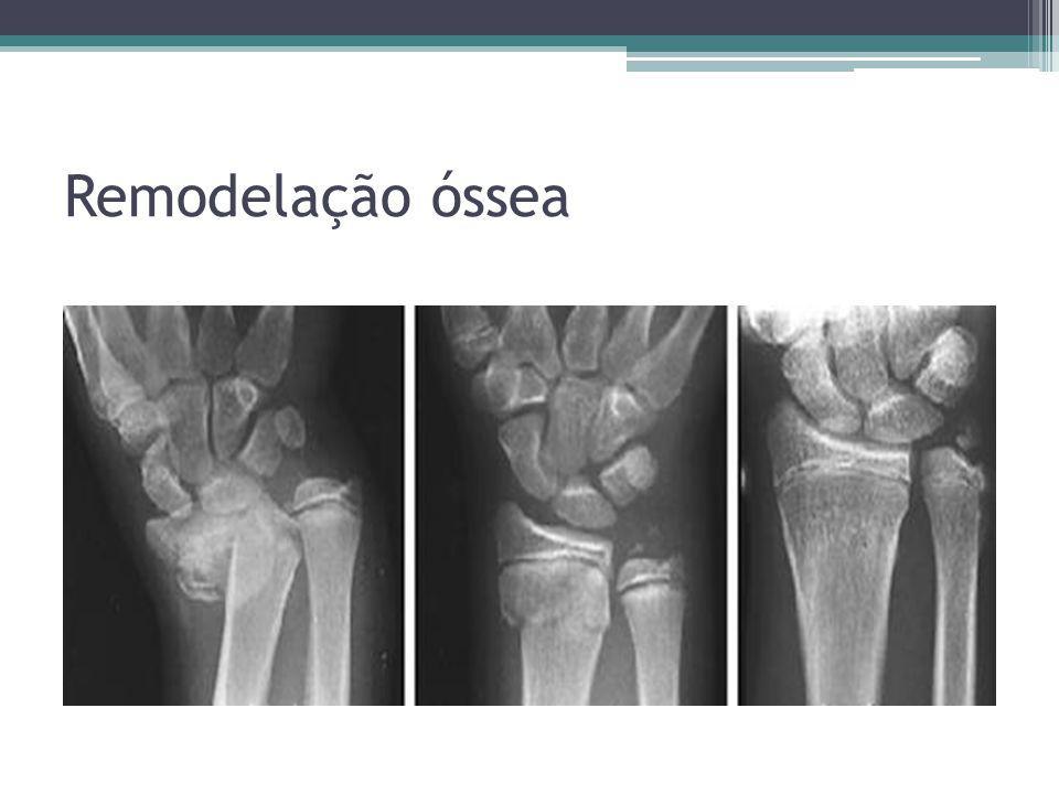 Remodelação óssea