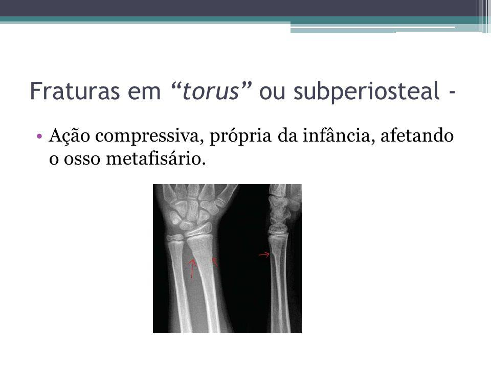 Fraturas em torus ou subperiosteal - Ação compressiva, própria da infância, afetando o osso metafisário.