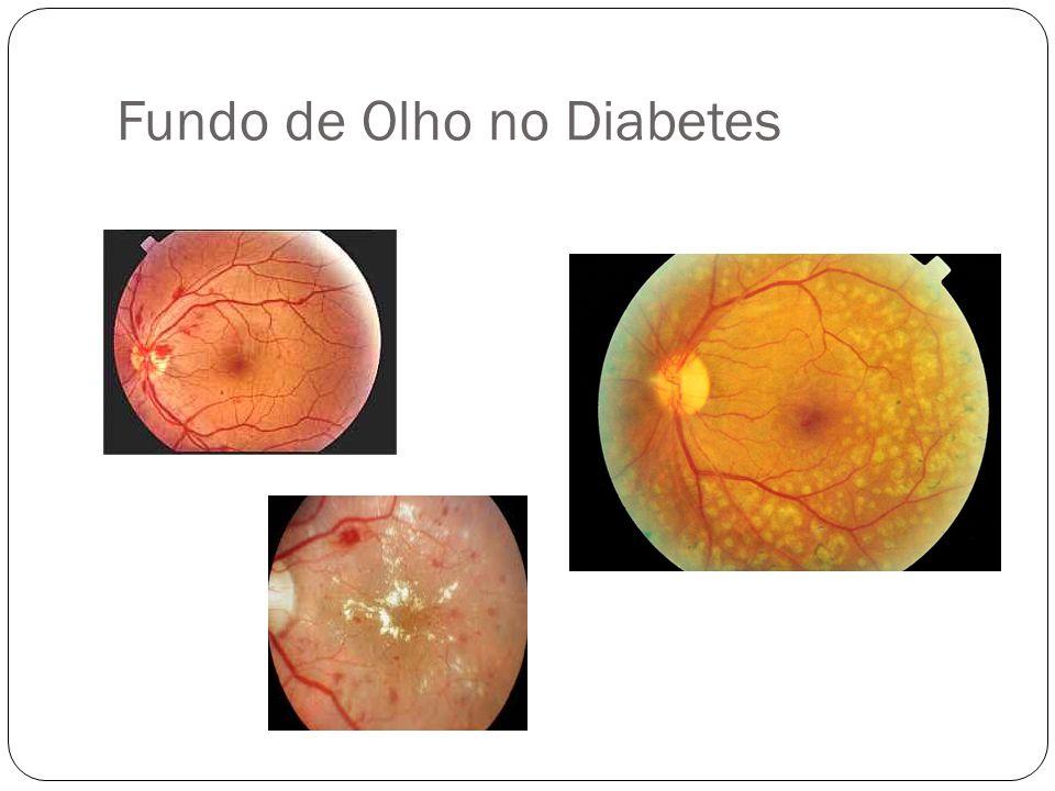 Lesão Glomerular As lesões precoces podem se iniciar após 2 anos de diagnóstico.