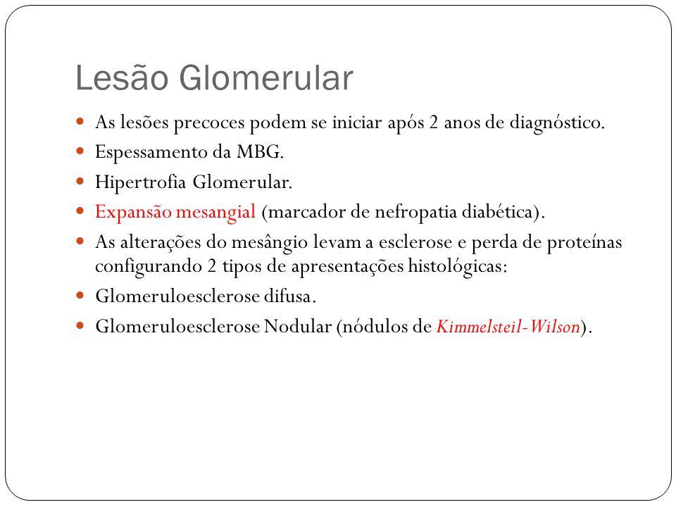 Nódulos de Kimmelsteil- Wilson Quase específicos do DM, mas podem aparecer nas seguintes doenças: 1- Amiloidose 2- Glomerulonefrite Membrano Proliferativa 3- Glomerulonefrite por cadeias leves.