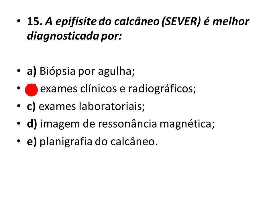 15. A epifisite do calcâneo (SEVER) é melhor diagnosticada por: a) Biópsia por agulha; b) exames clínicos e radiográficos; c) exames laboratoriais; d)