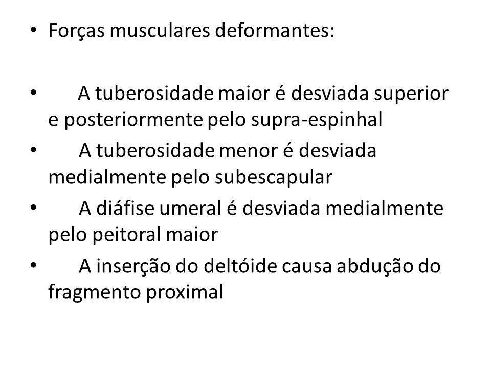 Forças musculares deformantes: A tuberosidade maior é desviada superior e posteriormente pelo supra-espinhal A tuberosidade menor é desviada medialmente pelo subescapular A diáfise umeral é desviada medialmente pelo peitoral maior A inserção do deltóide causa abdução do fragmento proximal