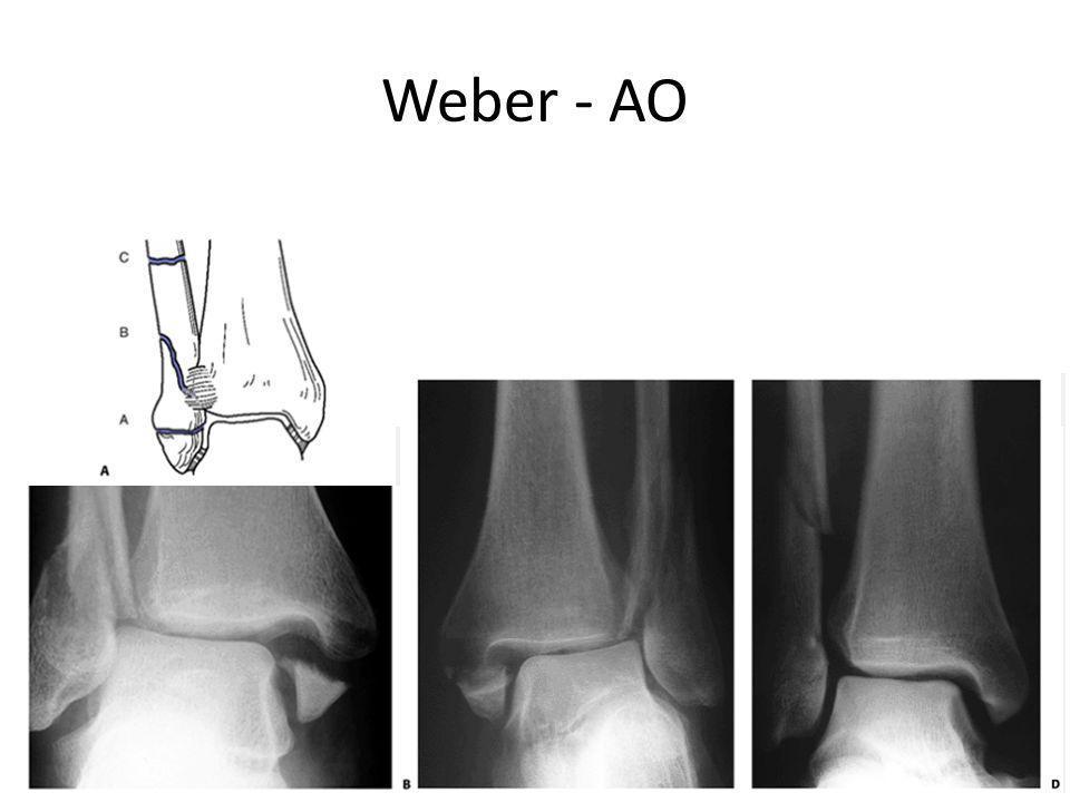 Weber - AO