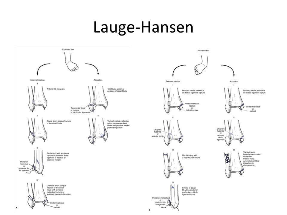 Lauge-Hansen