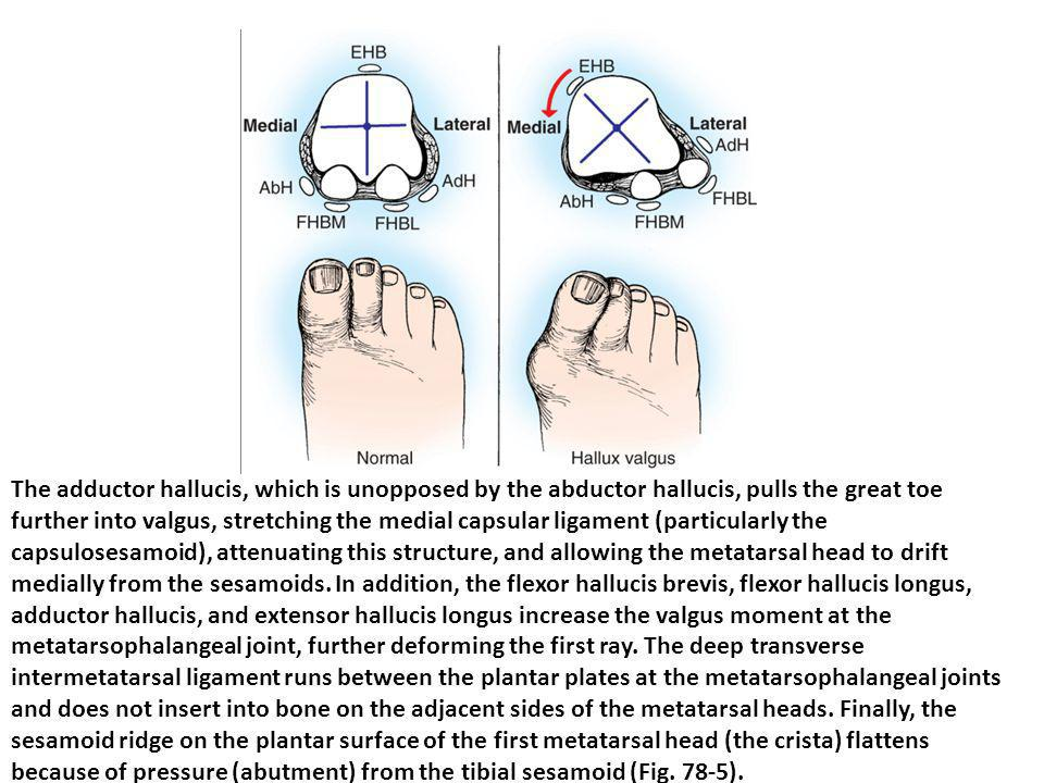 The adductor hallucis, which is unopposed by the abductor hallucis, pulls the great toe further into valgus, stretching the medial capsular ligament (