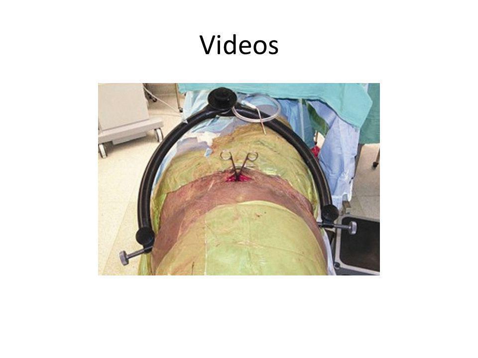 7.Qual a barra tarsal que apresenta melhor prognóstico após sua ressecção .