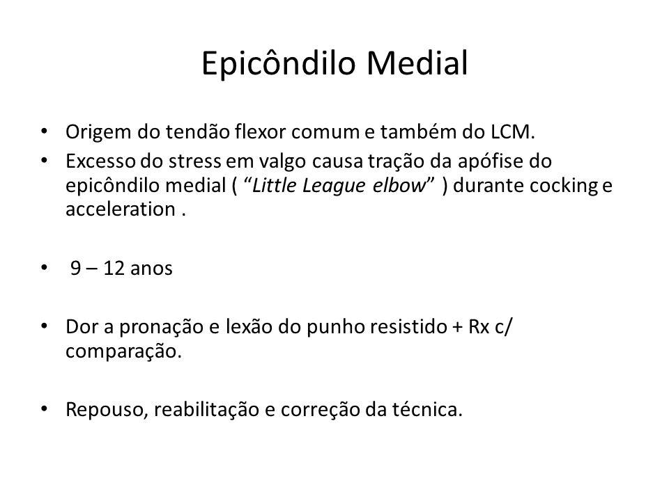 Epicôndilo Medial Origem do tendão flexor comum e também do LCM. Excesso do stress em valgo causa tração da apófise do epicôndilo medial ( Little Leag