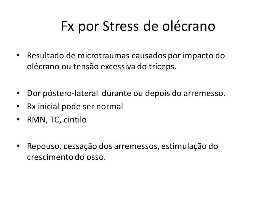 Fx por Stress de olécrano Resultado de microtraumas causados por impacto do olécrano ou tensão excessiva do tríceps. Dor póstero-lateral durante ou de