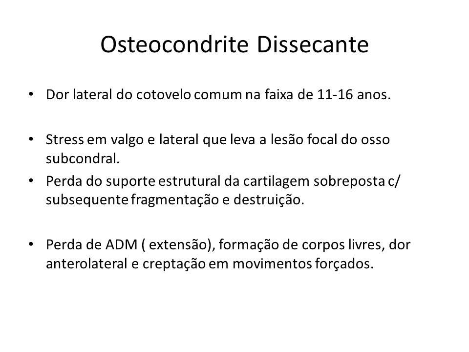 Osteocondrite Dissecante Dor lateral do cotovelo comum na faixa de 11-16 anos. Stress em valgo e lateral que leva a lesão focal do osso subcondral. Pe