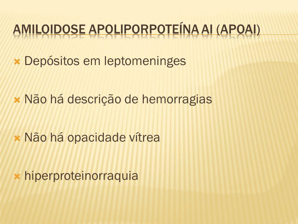 Depósitos em leptomeninges Não há descrição de hemorragias Não há opacidade vítrea hiperproteinorraquia