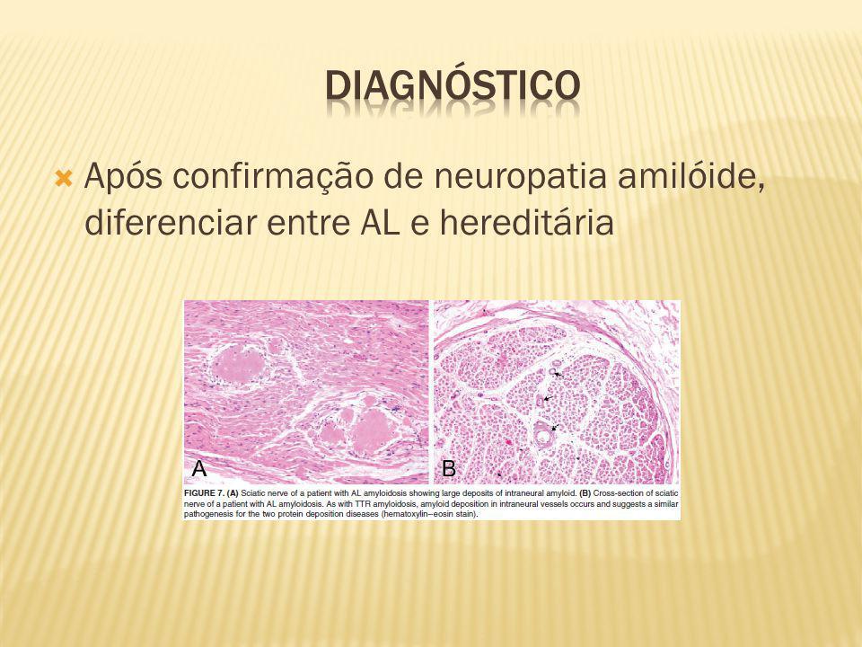Após confirmação de neuropatia amilóide, diferenciar entre AL e hereditária