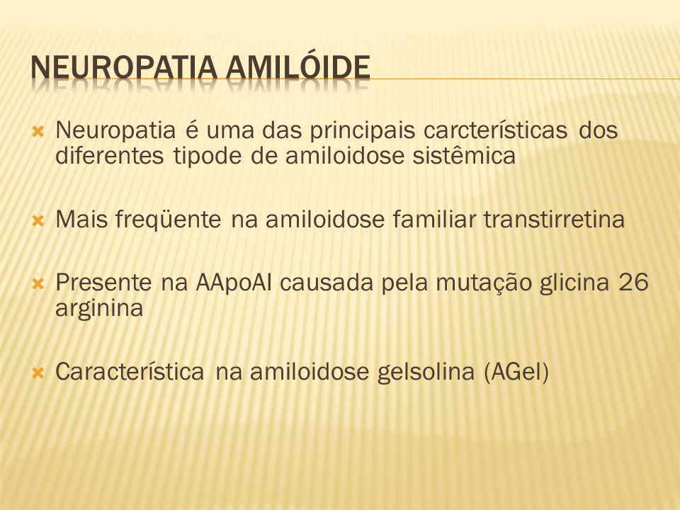 Neuropatia é uma das principais carcterísticas dos diferentes tipode de amiloidose sistêmica Mais freqüente na amiloidose familiar transtirretina Pres