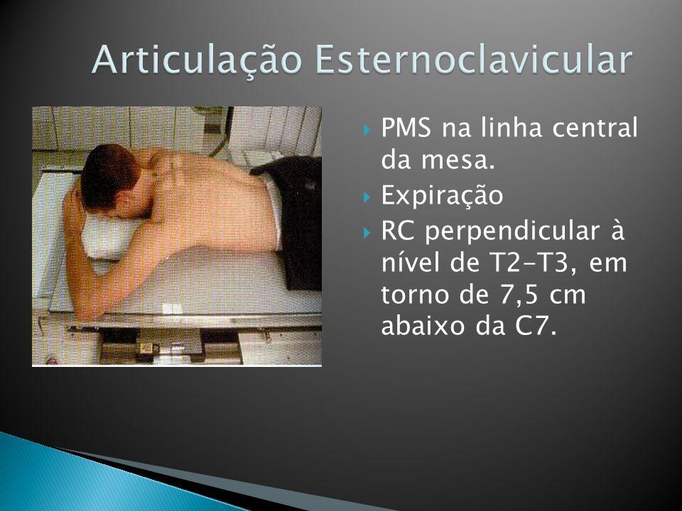 PMS na linha central da mesa. Expiração RC perpendicular à nível de T2-T3, em torno de 7,5 cm abaixo da C7.