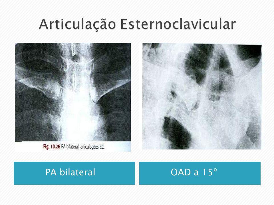 PA bilateral OAD a 15º