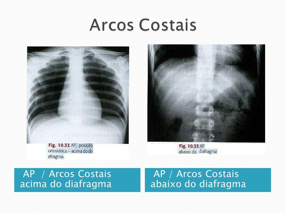 AP / Arcos Costais acima do diafragma AP / Arcos Costais abaixo do diafragma