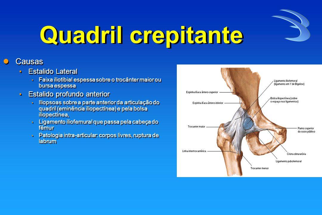 Síndrome da faixa iliotibial Desconforto e estalo no local do trocanter maior.