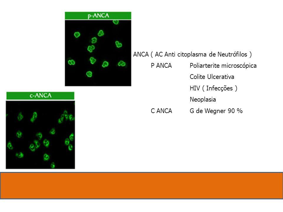 ANCA ( AC Anti citoplasma de Neutrófilos ) P ANCAPoliarterite microscópica Colite Ulcerativa HIV ( Infecções ) Neoplasia C ANCAG de Wegner 90 %