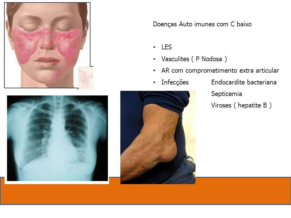 Doenças Auto imunes com C baixo LES Vasculites ( P Nodosa ) AR com comprometimento extra articular InfecçõesEndocardite bacteriana Septicemia Viroses