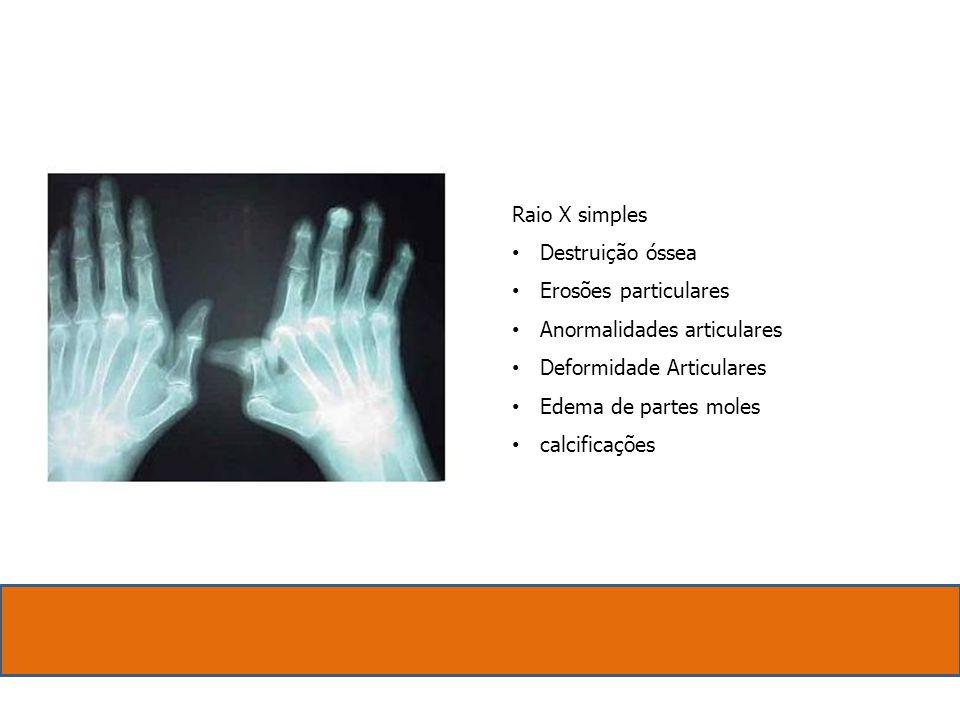 Raio X simples Destruição óssea Erosões particulares Anormalidades articulares Deformidade Articulares Edema de partes moles calcificações