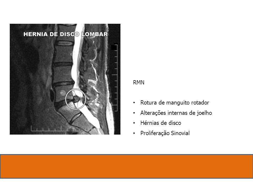 RMN Rotura de manguito rotador Alterações internas de joelho Hérnias de disco Proliferação Sinovial