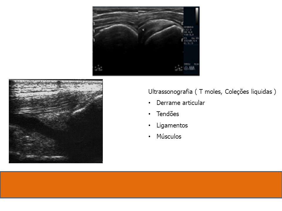 Ultrassonografia ( T moles, Coleções liquidas ) Derrame articular Tendões Ligamentos Músculos