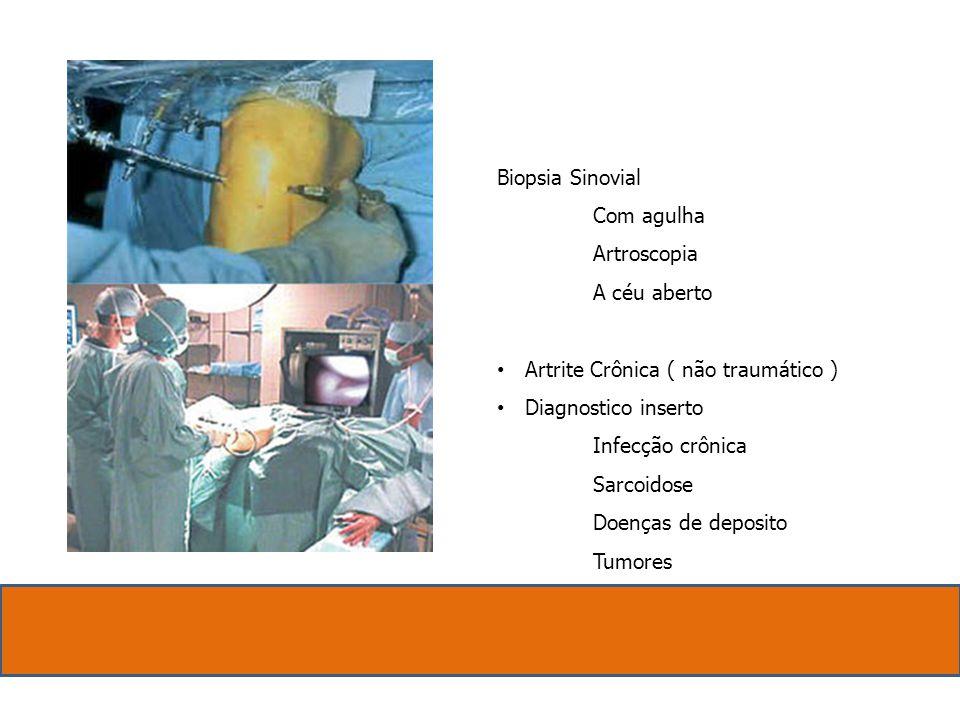 Biopsia Sinovial Com agulha Artroscopia A céu aberto Artrite Crônica ( não traumático ) Diagnostico inserto Infecção crônica Sarcoidose Doenças de dep
