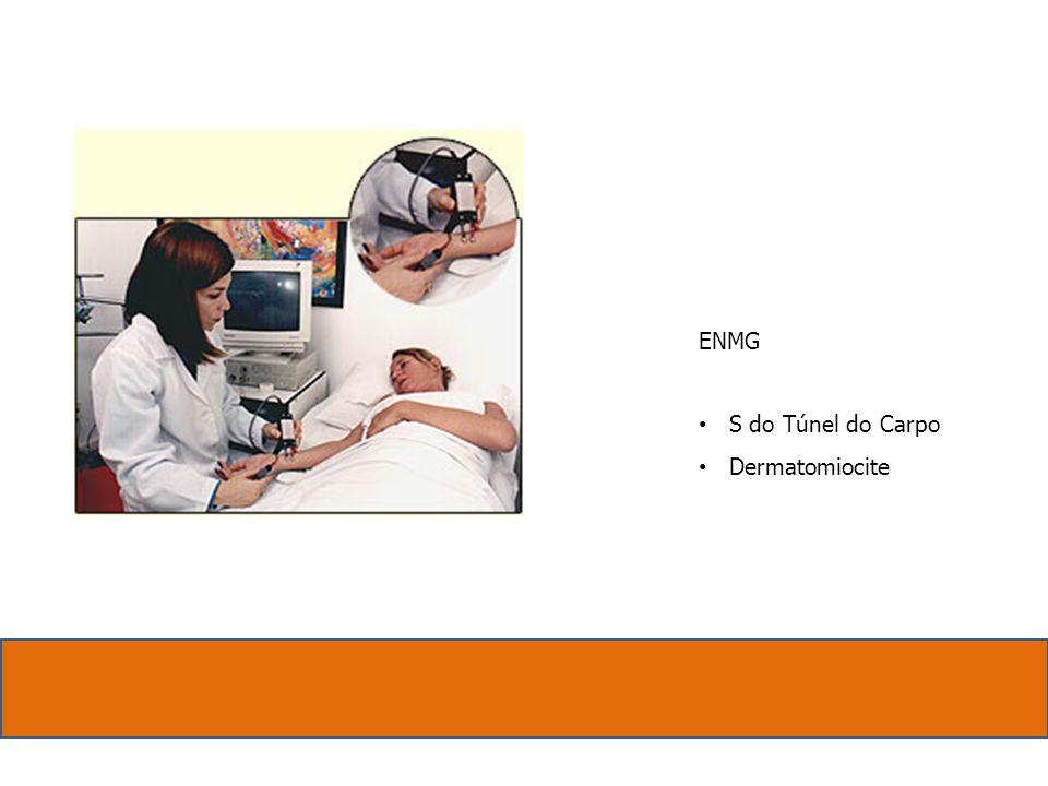 ENMG S do Túnel do Carpo Dermatomiocite