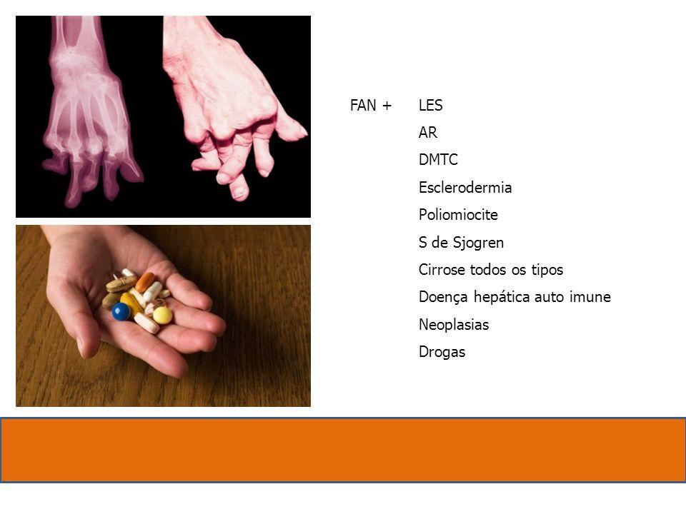 Anti DNA nativo Atividade de LES e Nefrite Anti SCL 70 ( 30 % ) Anti RNP ( LES – DMTC ) Anti SM ( LES 30 % ) Anti RO e Anti LA ( S.S.