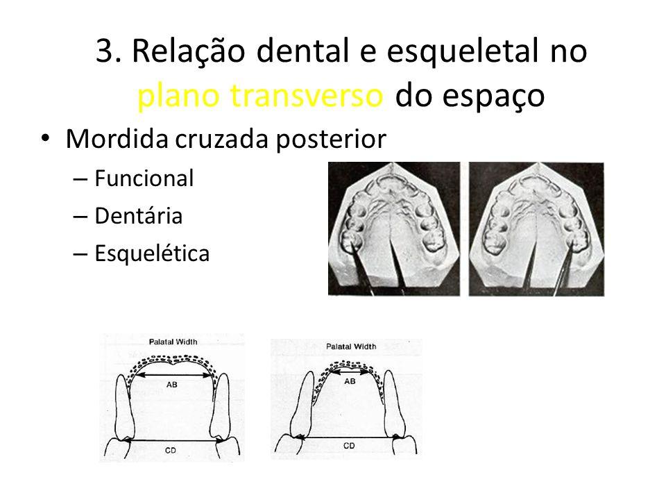 3. Relação dental e esqueletal no plano transverso do espaço Mordida cruzada posterior – Funcional – Dentária – Esquelética Figura do proffit