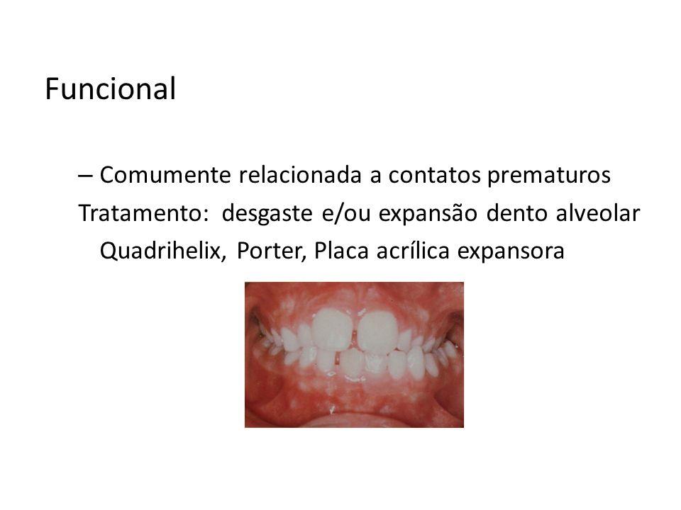 Funcional – Comumente relacionada a contatos prematuros Tratamento: desgaste e/ou expansão dento alveolar Quadrihelix, Porter, Placa acrílica expansor