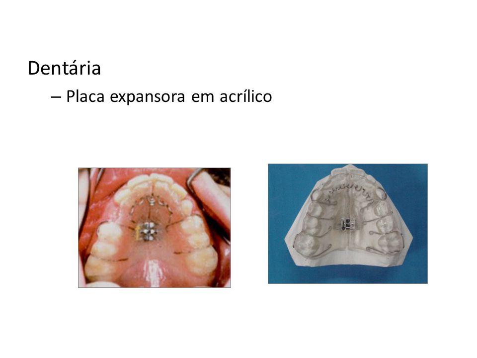 Dentária – Placa expansora em acrílico