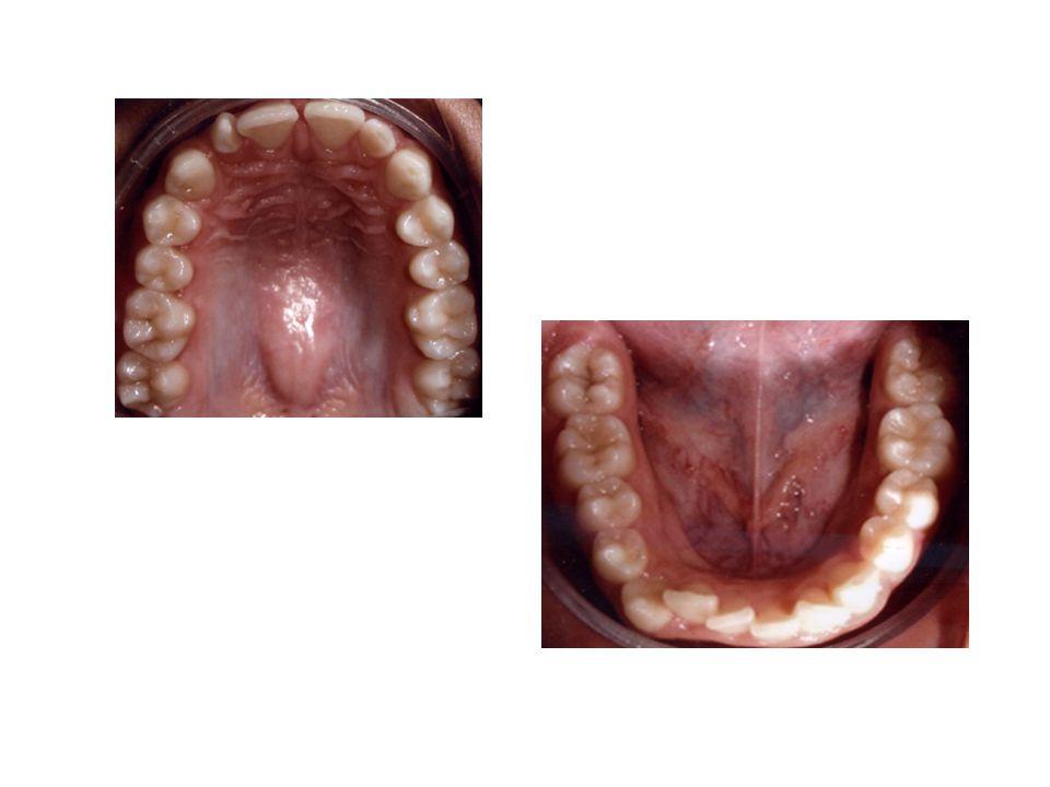 Funcional – Comumente relacionada a contatos prematuros Tratamento: desgaste e/ou expansão dento alveolar Quadrihelix, Porter, Placa acrílica expansora