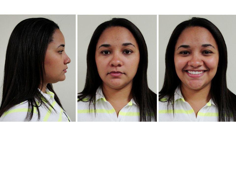 Dentária Elásticos intermaxilares