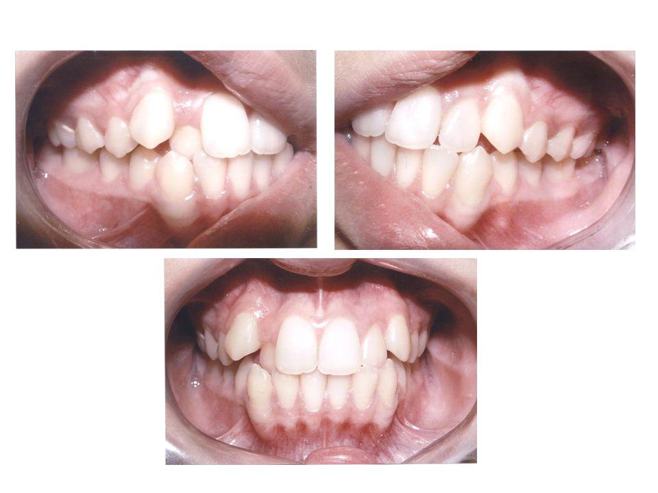 Dentária – Porter