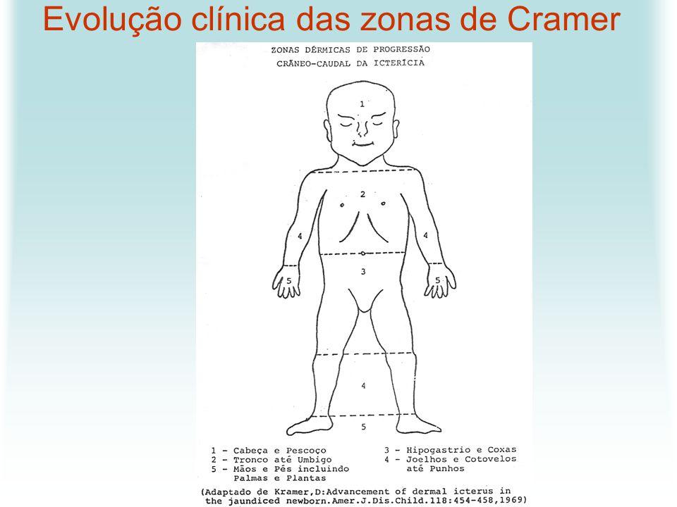 Evolução clínica das zonas de Cramer