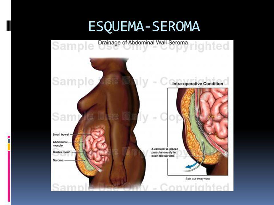 ESQUEMA-SEROMA