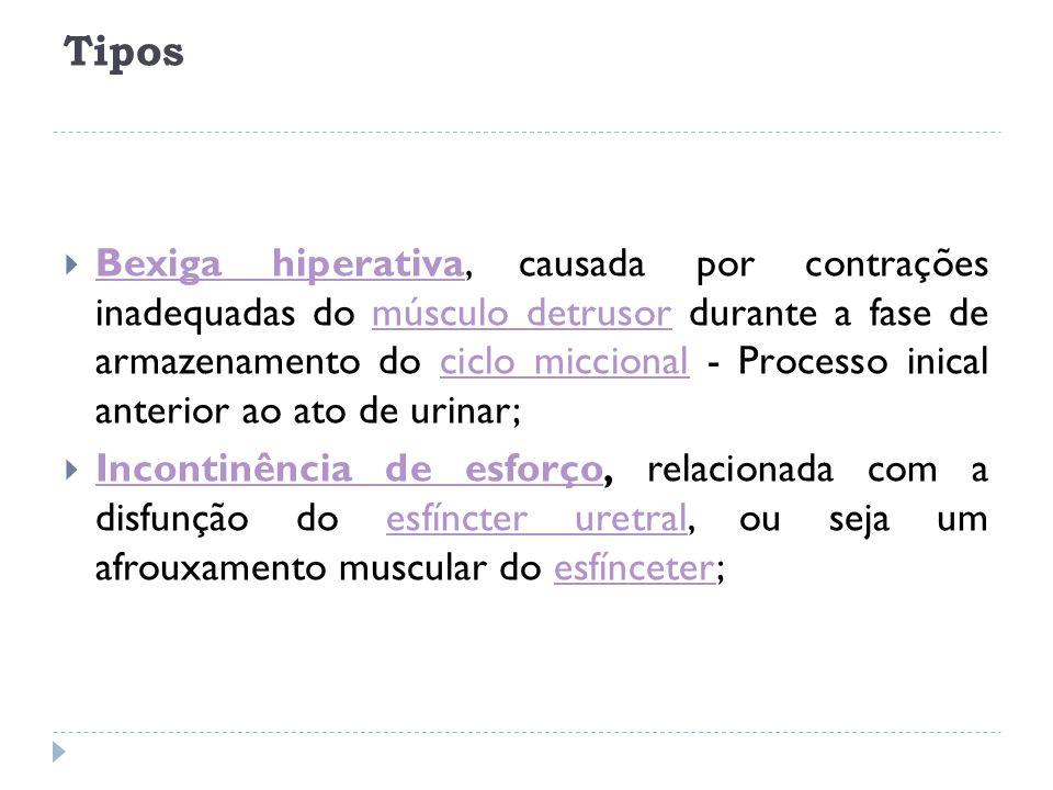 Tipos Bexiga hiperativa, causada por contrações inadequadas do músculo detrusor durante a fase de armazenamento do ciclo miccional - Processo inical a
