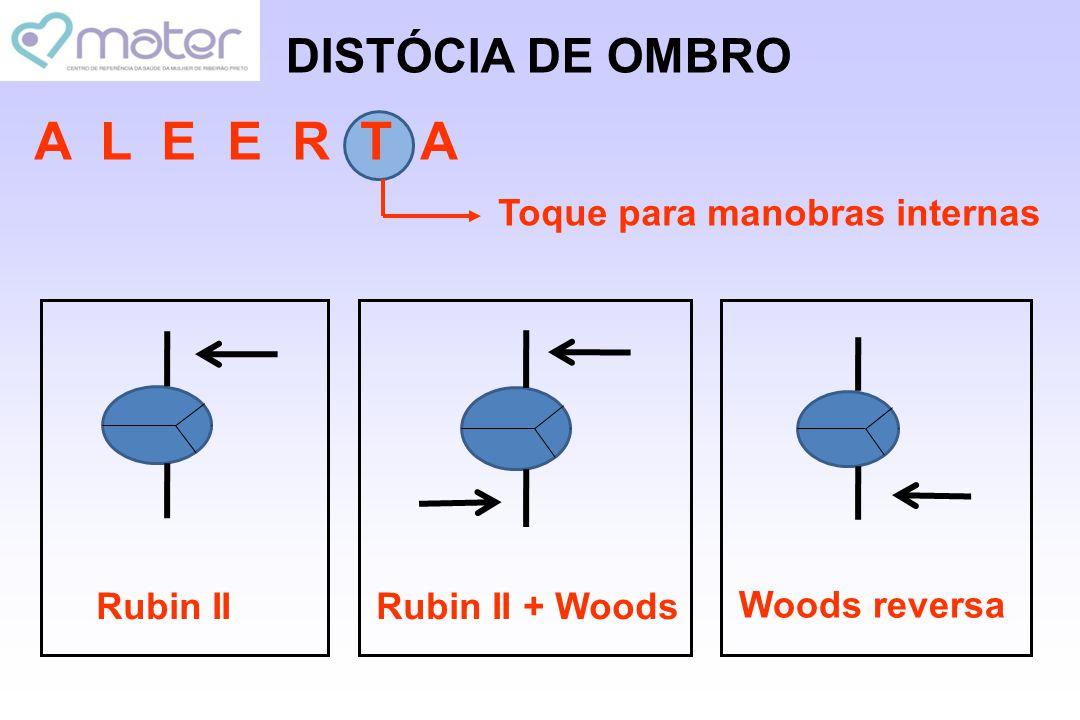 DISTÓCIA DE OMBRO A L E E R T A Toque para manobras internas Rubin IIRubin II + Woods Woods reversa