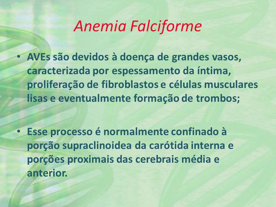 Anemia Falciforme AVEs são devidos à doença de grandes vasos, caracterizada por espessamento da íntima, proliferação de fibroblastos e células musculares lisas e eventualmente formação de trombos; Esse processo é normalmente confinado à porção supraclinoidea da carótida interna e porções proximais das cerebrais média e anterior.