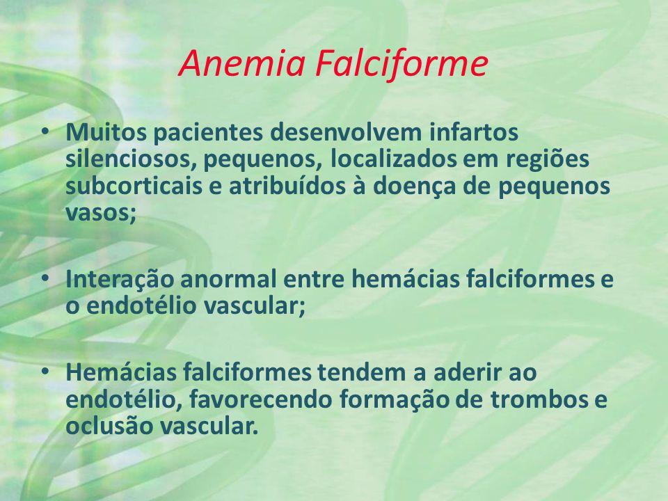 Anemia Falciforme Muitos pacientes desenvolvem infartos silenciosos, pequenos, localizados em regiões subcorticais e atribuídos à doença de pequenos v