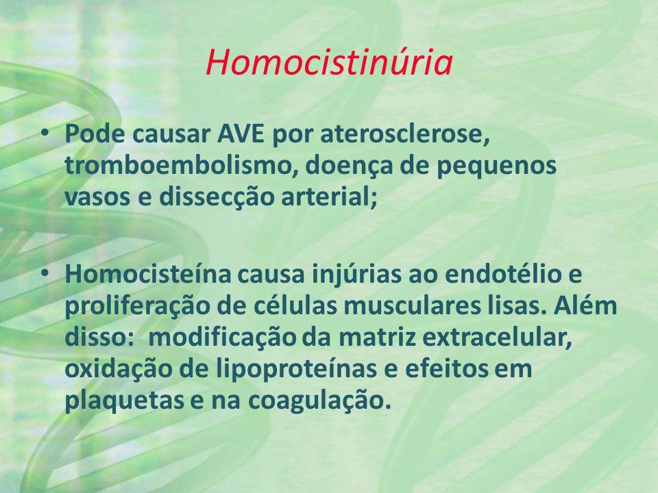 Homocistinúria Pode causar AVE por aterosclerose, tromboembolismo, doença de pequenos vasos e dissecção arterial; Homocisteína causa injúrias ao endotélio e proliferação de células musculares lisas.