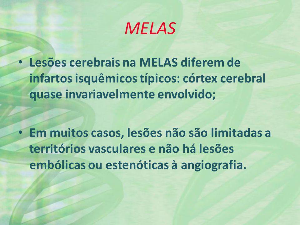 MELAS Lesões cerebrais na MELAS diferem de infartos isquêmicos típicos: córtex cerebral quase invariavelmente envolvido; Em muitos casos, lesões não são limitadas a territórios vasculares e não há lesões embólicas ou estenóticas à angiografia.