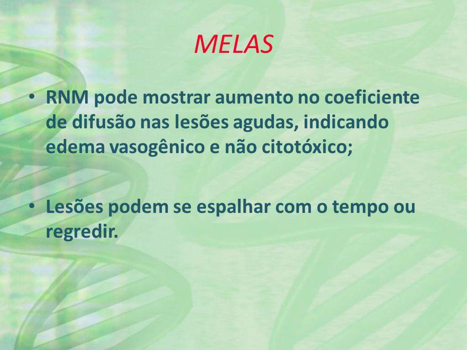 MELAS RNM pode mostrar aumento no coeficiente de difusão nas lesões agudas, indicando edema vasogênico e não citotóxico; Lesões podem se espalhar com o tempo ou regredir.