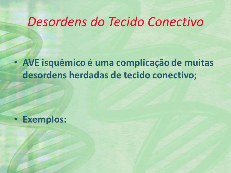 Desordens do Tecido Conectivo AVE isquêmico é uma complicação de muitas desordens herdadas de tecido conectivo; Exemplos: